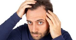 Como prevenir a queda de cabelo?